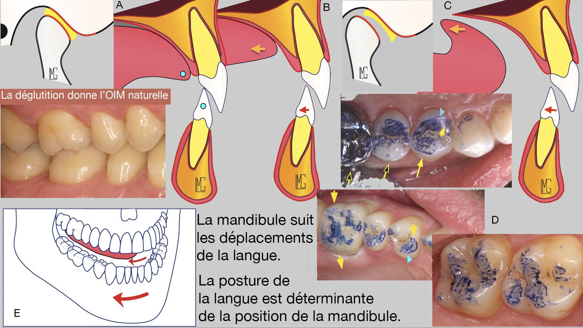Inflamația articulației falangei degetului, Articole similare